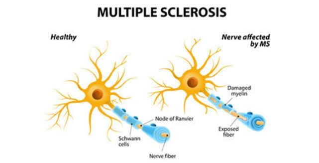 Multiple Sclerosis and Plant-Based Nutrition – Vegan Sustainability